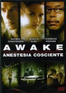 Awake. Anestesia cosciente
