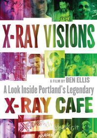 X Ray Visions